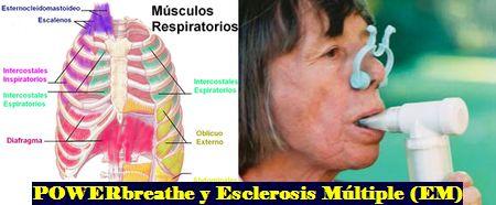 Esclerosis Multiple y Respiracion: Disfuncion Pulmonar, Control y Tratamiento en la Esclerosis Multiple