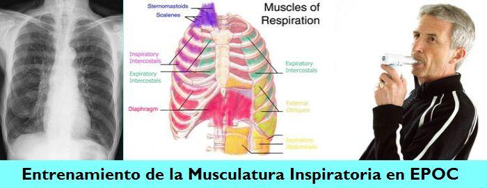 El Entrenamiento de la Musculatura Inspiratoria para pacientes con Enfermedad Pulmonar Obstructiva Crónica (EPOC): Guía Práctica para Médicos