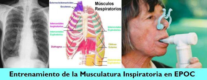 Entrenamiento Muscular Inspiratorio (EMI) en el Paciente con Enfermedad Pulmonar Obstructiva Crónica (EPOC)