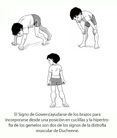 El entrenamiento muscular inspiratorio ayuda a las personas con distrofia muscular