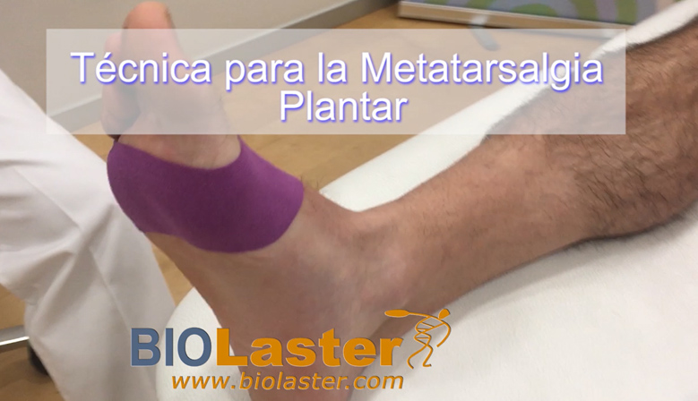 Vendaje Neuromuscular - Metatarsalgia Plantar