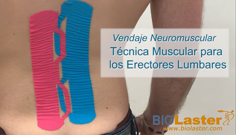 Vídeo: Actualización de Técnica de Vendaje Neuromuscular para la Zona Lumbar